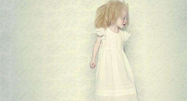 Albinizm Hastası Nasıl Olunur ?